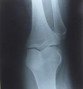 knee_x-ray